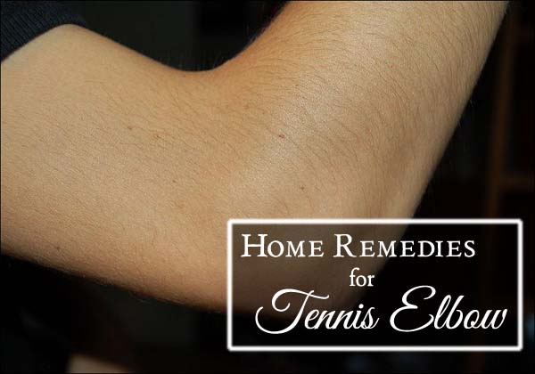 home-remedies-for-tennis-elbow