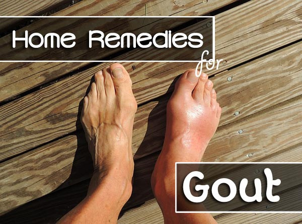 Image result for remedies for gout