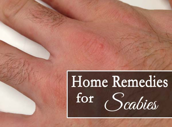 Top 10 Home Remedies For Scabies Starsricha