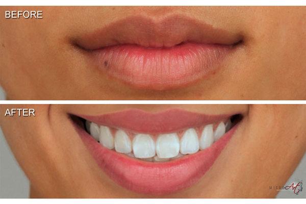 permanent lip lining